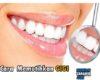Cara Memutihkan Gigi Secara Alami yang Praktis dan Efektif