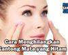 Cara Menghilangkan Kantong Mata yang Hitam
